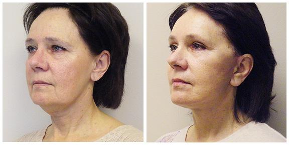Facelift-Patient III.jpg