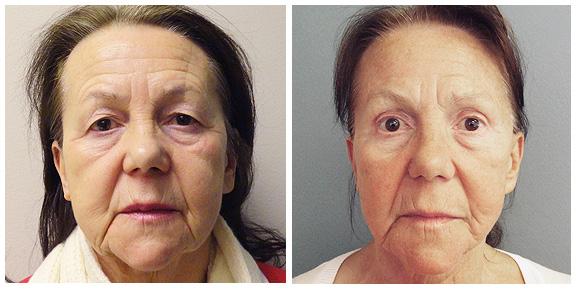 Facelift-Patient IV-Ft.jpg