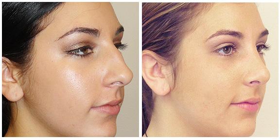 Nose-Patient IV-Lt.jpg
