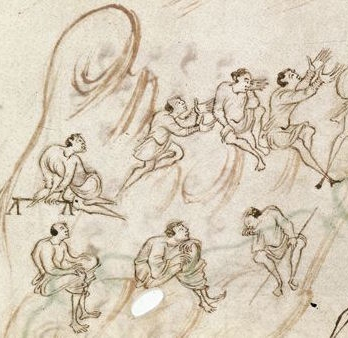 London, British Library, MS Harley 603, fol. 6v — drawings of variously impaired individuals.
