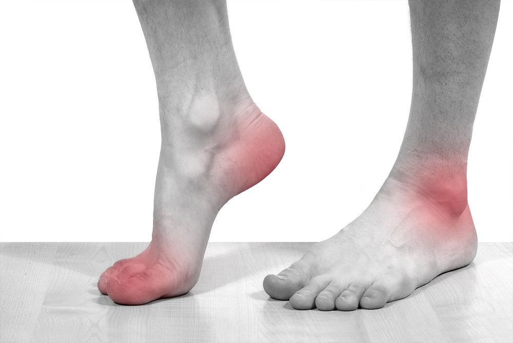 Pain-foot.jpg