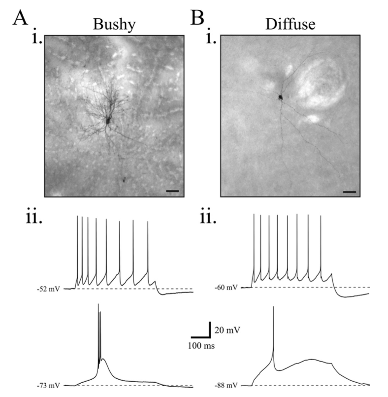 - Beatty JA, Sylwestrak EL, Cox CL (2009) Two distinct populations of projection neurons in the rat lateral parafascicular thalamic nucleus and their cholinergic responsiveness. Neuroscience 162:155-173.