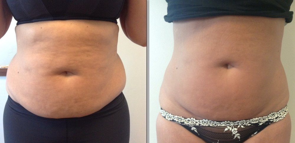 6-sessions-of-Cavitation-and-2-sessions-of-Cryolipolysis-Before-and-After-front.jpg