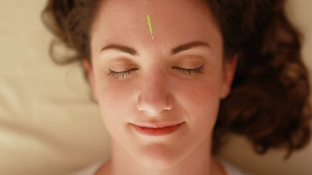 facial rejuvenation acupuncture.JPG