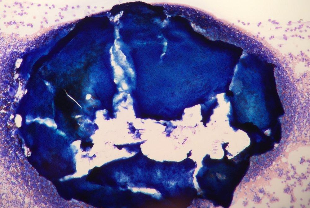 Hypercellular particle.jpg