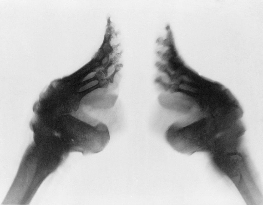 bound feet (the golden lotus)