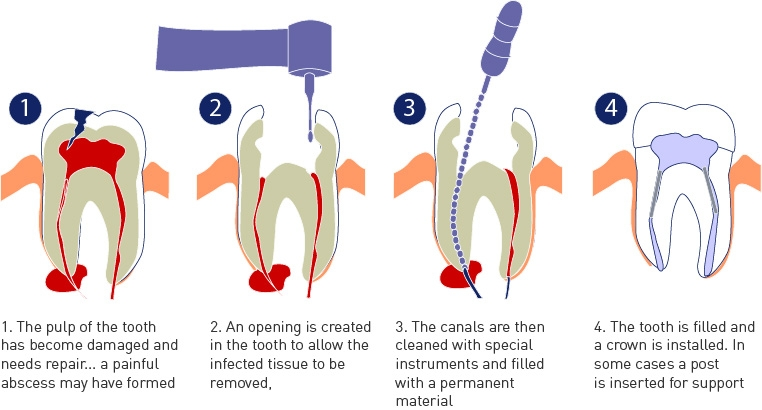 root-canal-1.jpg