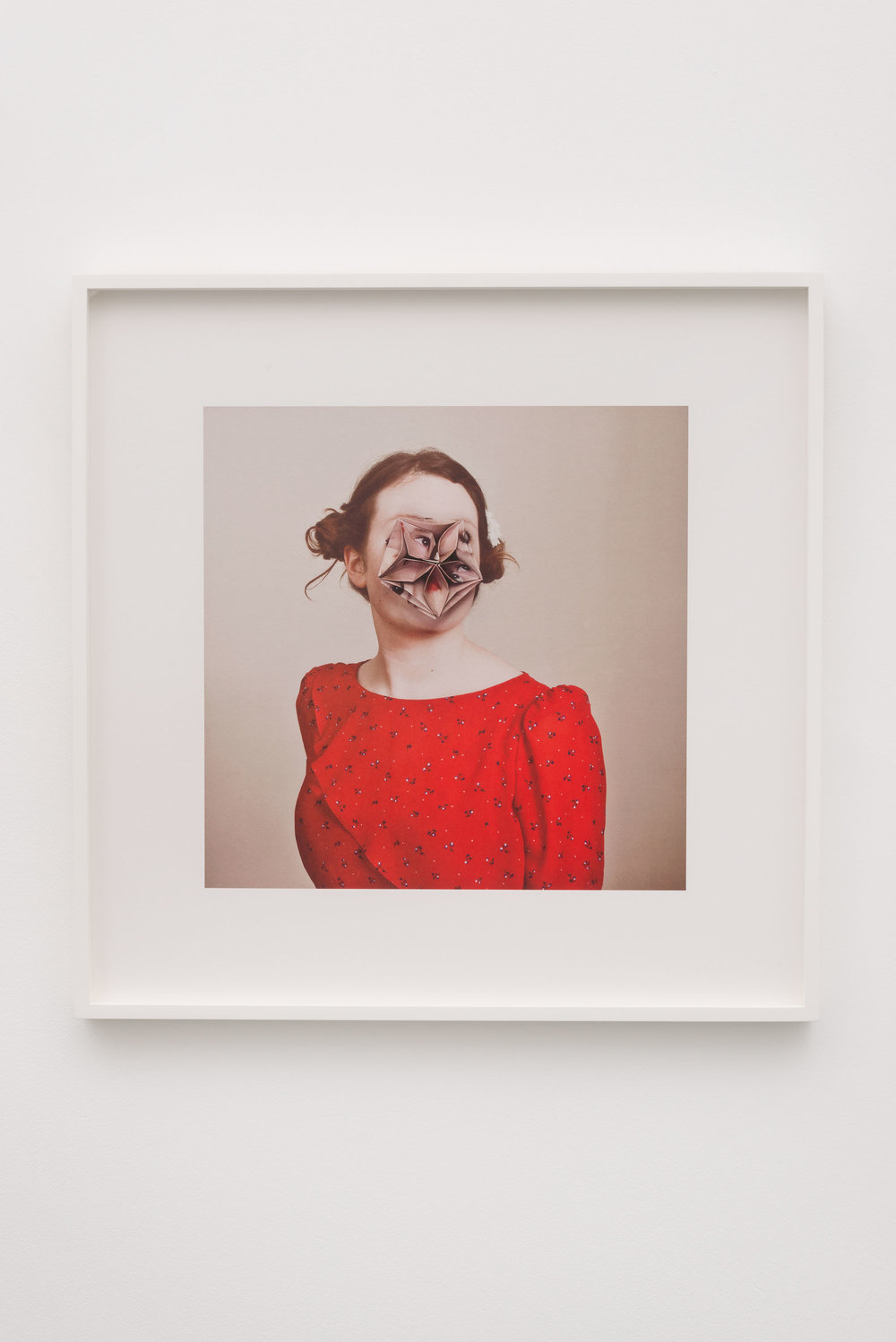 Alma Haser,  Patient No. 4 (Alex) , 2013  Digital pigment print, 60 x 60 cm (approx. 24 x 24 in), edition of 10, framed   Inquire