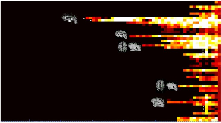 Sequential spread of seizure (beta-band) in a seemingly less-localizable onset by standard visual analysis