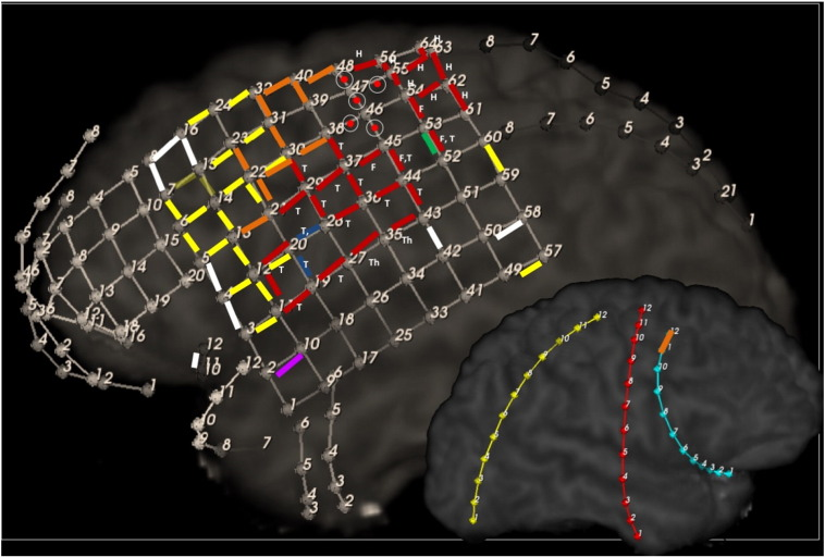 Functional map from cortical stimulation. Red: positive motor; Green: sensory; Yellow: Language. Orange: Stimulations that triggered consistent impairment of consciousness with trains greater than 2 seconds; Circle with central red dot:  Frontal eye field ; Blue: negative tongue motor; Purple: Non-epileptic experiential auditory déjà vu; White: Tested up to 12 mA with no observable function identified. T = tongue, Th = throat, F = face, H = hand.