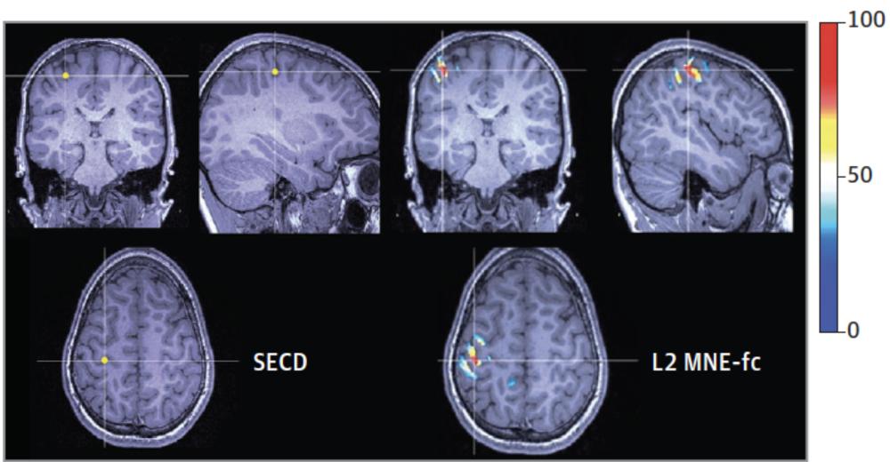 Visualization of MEG seizures on the brain.