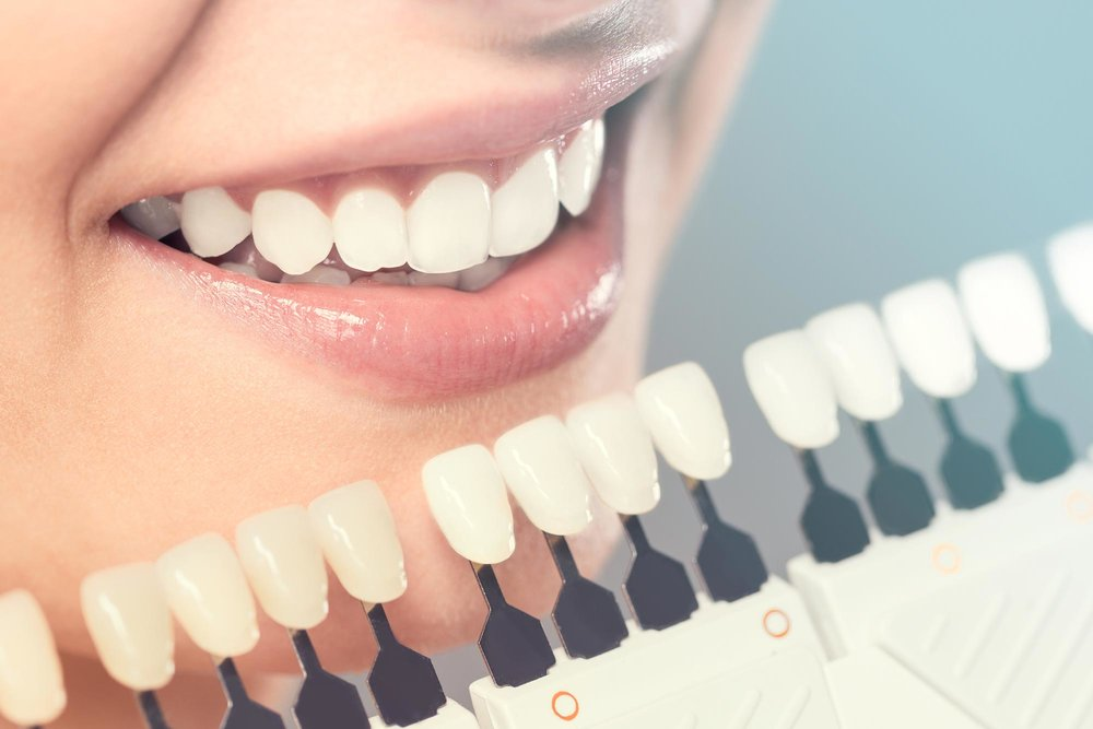 <p><strong>Teeth Whitening</p></strong>