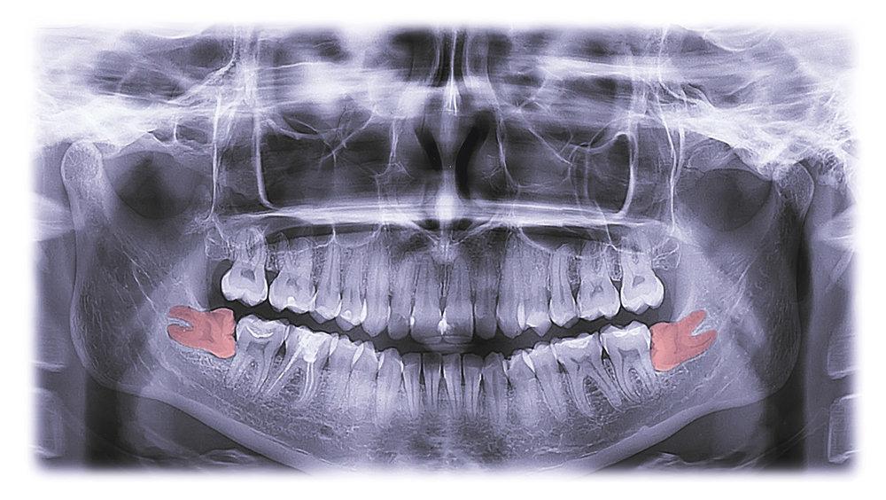 wagga dentist wisdom teeth.jpg