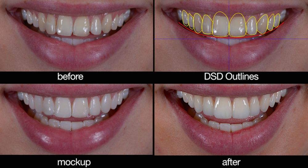 dentist wagga smile design.png