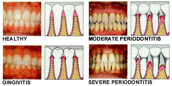 dentist wagga gum disease periodontics.jpg