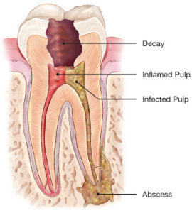 dentist wagga root canal treatment.jpg