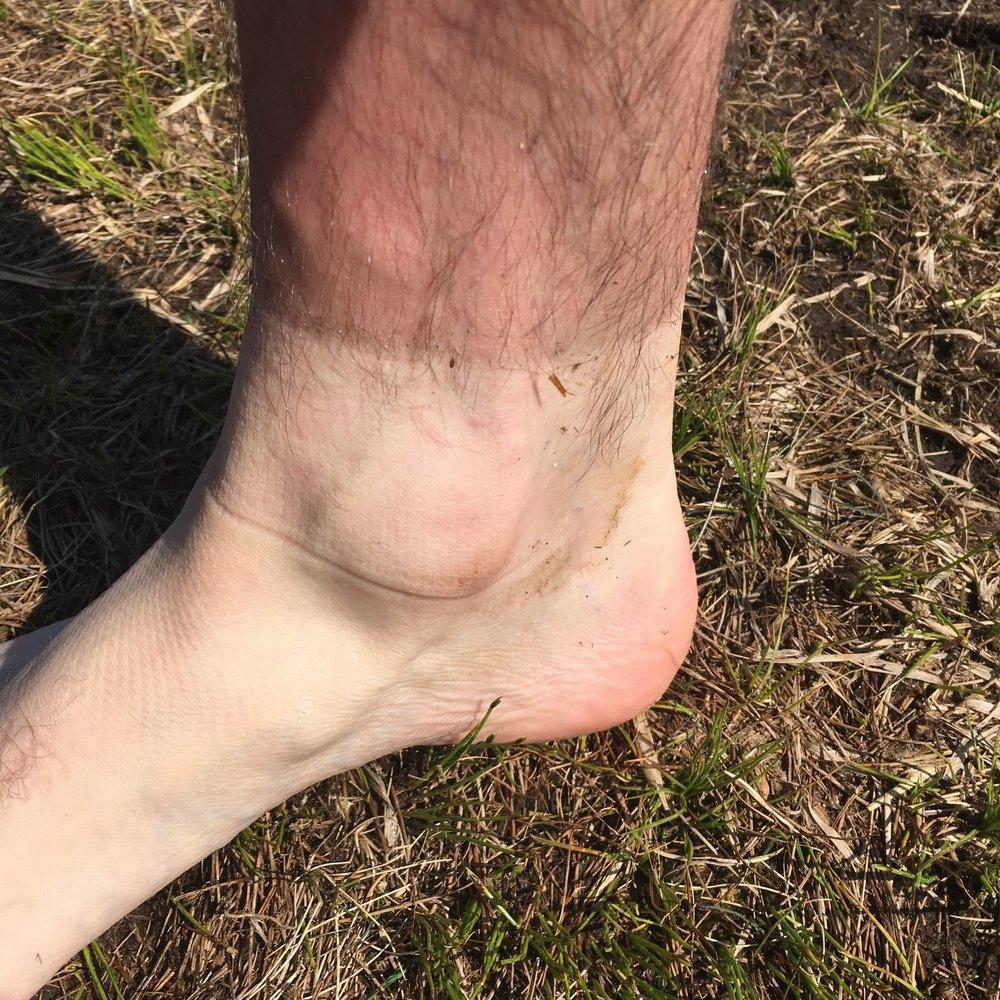 Tan lines in Wales