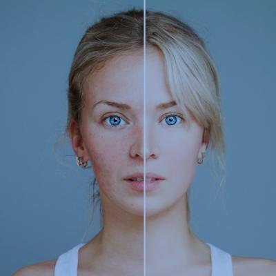 img-acne.jpg