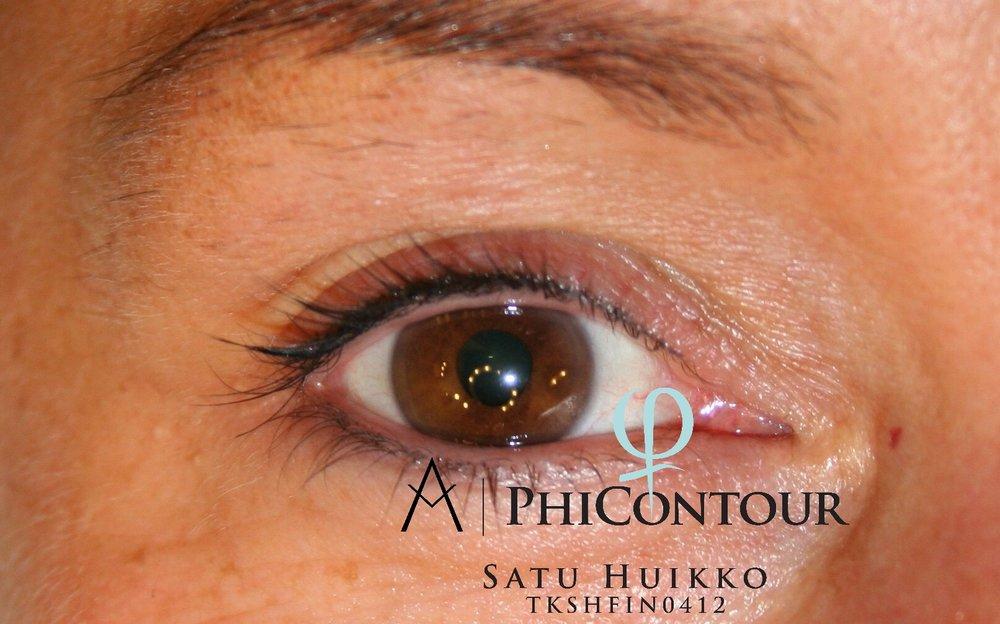 Eyeliner pigmentointi yläluomella parantuneena ennen jälkipigmentointia.