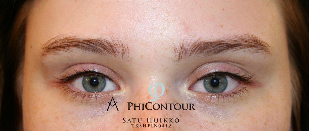 Eyeliner pigmentointi yläluomella heti ensimmäisen käsittelyn jälkeen.