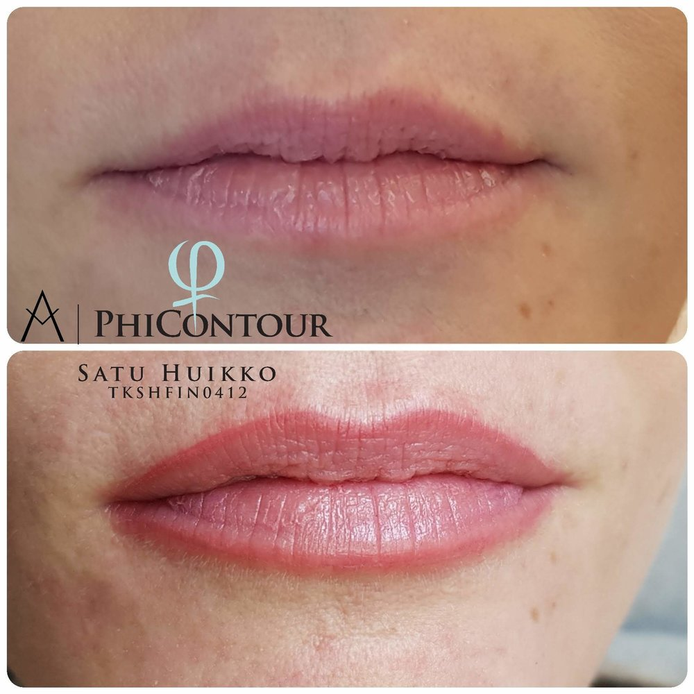 Pehmeä huulten rajauspigmentointi 3D-tekniikalla. Huulten pigmentointi aiheuttaa yleensä lievää turvotusta välittömästi käsittelyn jälkeen. Usein turvotus laskee seuraavan päivän aikana.