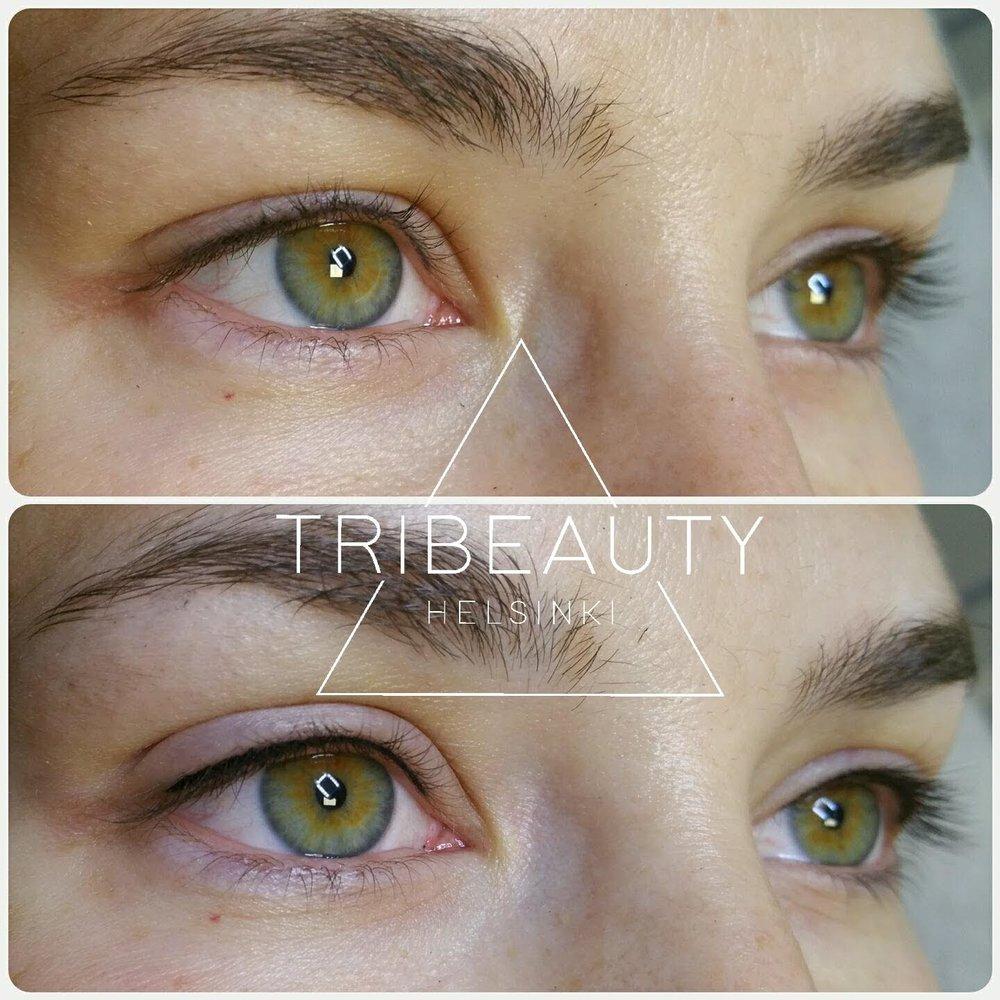 Ylemmässä kuvassa mustalla pigmentoitu silmänrajaus yläluomella ennen jälkipigmentointia ja alemmassa kuvassa heti jälkipigmentoinnin jälkeen. Rajausta paksunnettiin toisessa käsittelyssä asiakkaan toiveesta.