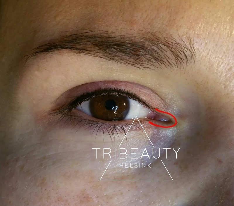 Ripsien väliin tehty eyeliner. Liian lähelle kyynelkanavaa ei saa pigmentoida. Silmän sisänurkka on iholtaan hyvin ohut eikä siksi sovellu pigmentoitavaksi.