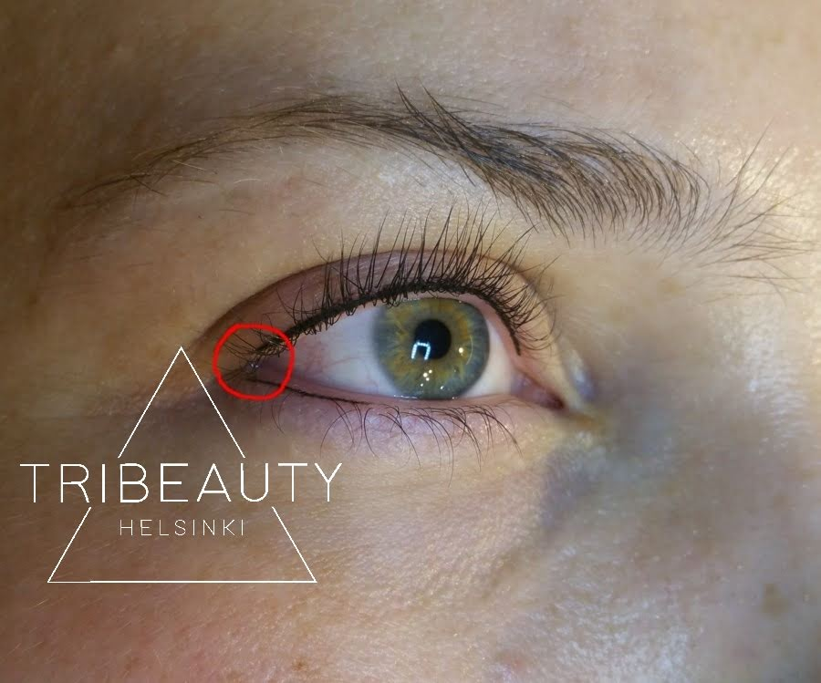Ylä- ja alarajaus heti ensimmäisen pigmentointikerran jälkeen. Rajaukset eivät voi koskettaa toisiaan, sillä silmänurkan iho on liian ohutta pigmentoitavaksi.