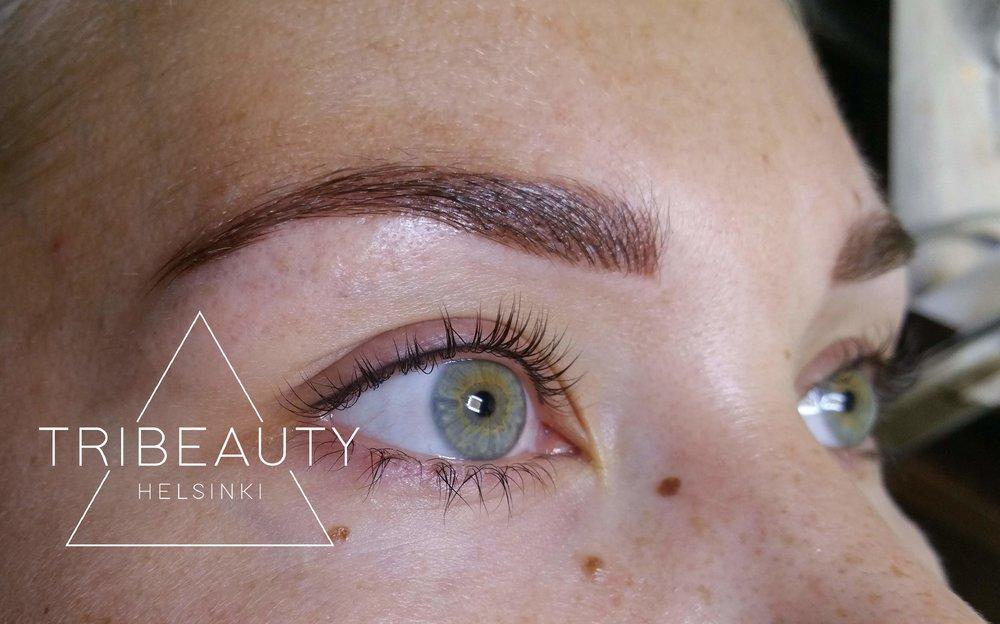 6 kuukautta sitten tehty eyelinerpigmentointi. Kuvassa myös muualla tehdyn epäonnistuneen pigmentoinnin korjaus juuri tehtynä.