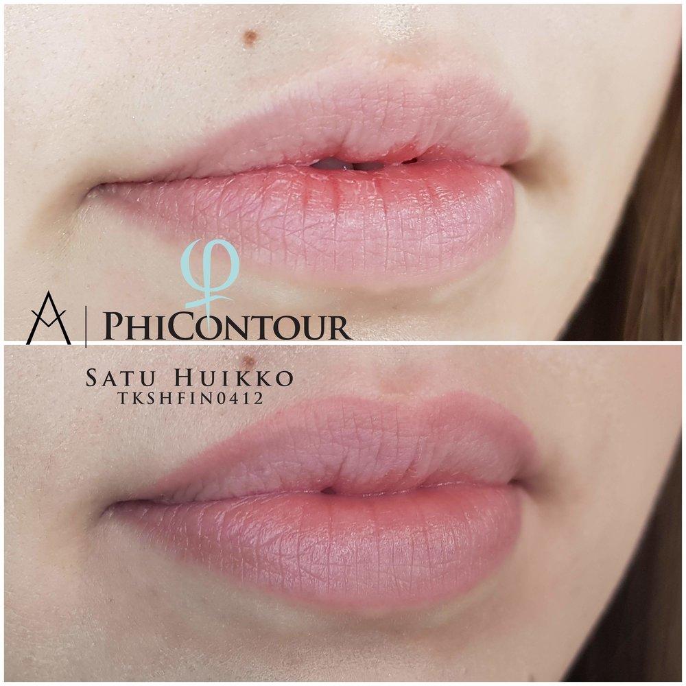 Parantunut huulten pigmentointi ennen jälkipigmentointia.
