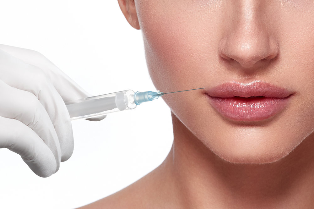 Lip Fillers - Emphasise lip contours or add volume to your lips with our lip filler treatments.
