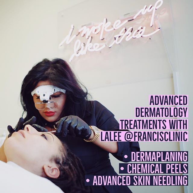 "Francis Clinic are thrilled to have extended their services to include specialised dermatology treatments that compliment and enhance the injectables we offer. Many of you have already visited Lalee for dermaplaning and love your results, but for those of you who have never heard of dermaplaning, here is a little write up from Cosmo magazine that explains a few things: ""Dermaplaning is a super effective exfoliating treatment in which a doctor or aesthetician uses a surgical scalpel to gently scrape off any dead skin cells on the surface of your skin and (along with the peach fuzz on your face). You might be wondering Why is this necessary? It's because the buildup of dead skin and microscopic hairs can make your complexion appear dull, flaky, and can even cause breakouts due to clogged pores and hair follicles. Which is why this form of mechanical exfoliation is essential for maintaining an even, healthy glow. "" * Don't trust just anyone to perform the procedure. Cosmopolitan magazine recommends only seeing a doctor or medical aesthetician from a dermatology or plastic surgeon's office to ensure the best and safest results. * Dermaplaning is recommended for all skin types. * There is no down time * Contrary to what you might think, dermaplaning will not make your hair grow back thicker or darker * You'll need to be very diligent with SPF afterward * It'll change your life as far as makeup application goes. * Don't try this at home. Since dermaplaning is performed with surgical scalpels (not your average razor), you should leave it to the pros. #lipgoals #lipaugmentation #injectables #aesthetics #beauty #fillerseastsussex #dermalfillers #dermalfiller #naturallipfiller #cosmetictreatment #lipboss #lipenvy #naturallips #lipinjections #lipgloss #lipfillers #lippic #perfectpout #teartroughfillers #cheekfillers #jawlinefiller #dermatologist #dermaplaning #chemicalpeel #cupidsbow #facialaesthetics #antiwrinkleinjections #jawfiller"