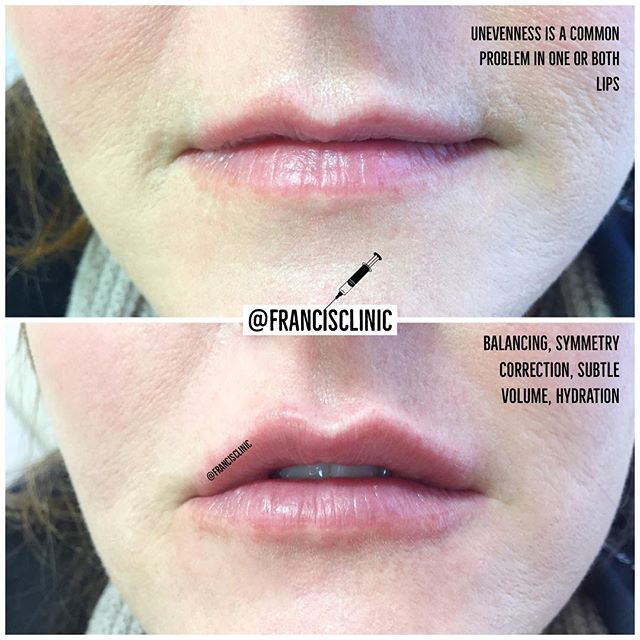 Lip correction with 1ml @revolax_uk 💖 ordered as always with @panmedicaofficial ☝🏼Click at the top of the page to book ✨ Treatments tailored to you 🗓 Clinics every week 💕 Full & free aftercare & advice 🚑  Medically qualified staff 💌 DM @francisclinic Or 📧 info@francisclinic.co.uk 💻 www.francisclinic.co.uk 📌 Eastbourne town centre, UK 🇬🇧 #lipgoals #lipaugmentation #injectables #aesthetics #beauty #fillerseastsussex #dermalfillers #dermalfiller #naturallipfiller #cosmetictreatment #lipboss #lipenvy #naturallips #lipinjections #lipgloss #lipfillers #lippic #perfectpout #teartroughfillers #cheekfillers #jawlinefiller #dermatologist #dermaplaning #chemicalpeel #cupidsbow #facialaesthetics #antiwrinkleinjections #jawfiller