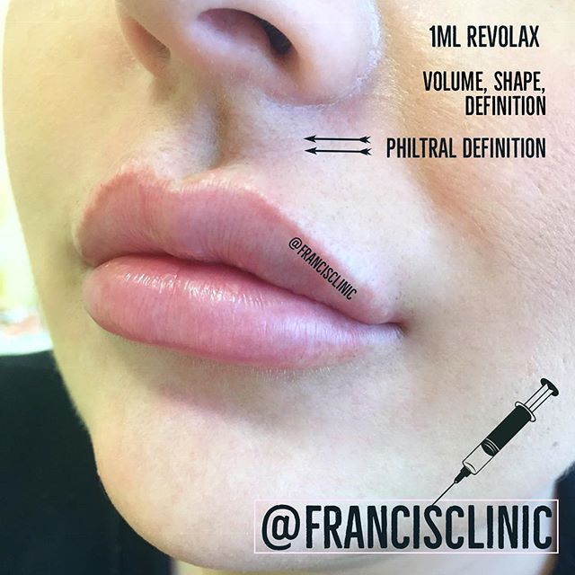 Remember it's super easy to book your appointments with us through the @booksyuk app 💖 ☝🏼Click at the top of the page to book ✨ Treatments tailored to you 🗓 Clinics every week 💕 Full & free aftercare & advice 🚑  Medically qualified staff 💌 DM @francisclinic Or 📧 info@francisclinic.co.uk 💻 www.francisclinic.co.uk 📌 Eastbourne town centre, UK 🇬🇧 #lipgoals #lipaugmentation #injectables #aesthetics #beauty #fillerseastsussex #dermalfillers #dermalfiller #naturallipfiller #cosmetictreatment #lipboss #lipenvy #naturallips #lipinjections #lipgloss #lipfillers #lippic #perfectpout #teartroughfillers #cheekfillers #jawlinefiller #dermatologist #dermaplaning #chemicalpeel #cupidsbow #facialaesthetics #antiwrinkleinjections #jawfiller