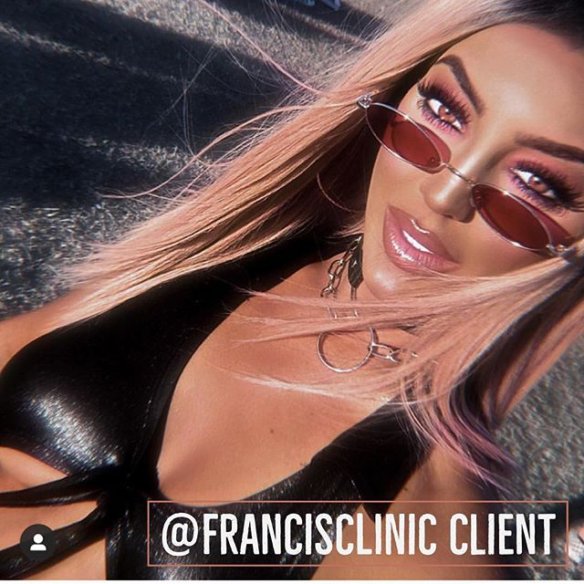 Our girl @lucygann showing us how it's done. This is probably the closest Francis Clinic will get to Coachella 😆 via our fillers that travel with our clients. As busy working mums a festival like this feels like a world away... maybe one day 🤔💖 ☝🏼 Click at the top of the page to book ✨ Treatments tailored to you 🗓 Clinics every week 💕 Full & free aftercare & advice 🚑  Medically qualified staff 💌 DM @francisclinic Or 📧 info@francisclinic.co.uk 💻 www.francisclinic.co.uk 📌 Eastbourne town centre, UK 🇬🇧 #lipgoals #lipaugmentation #injectables #aesthetics #beauty #fillerseastsussex #dermalfillers #dermalfiller #naturallipfiller #lipboss #lipenvy #naturallips #lipinjections #lipgloss #lipfillers #lippic #perfectpout #teartroughfillers #cheekfillers #jawlinefiller #dermatologist #dermaplaning #chemicalpeel #cupidsbow #facialaesthetics #antiwrinkleinjections #jawfiller
