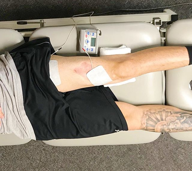 When muscles have a hard time contracting after surgery, injury, or in @taylor_made835 case, a motorcycle accident 🏍, enter NMES. Neuromuscular electrical stimulation (NMES) uses electrical current⚡️to stimulate contraction in a muscle, allowing the patient to re-educate 📚the impaired muscle to regain strength 🏋️♂️ and function. Swipe to see that quad fire! #physicaltherapy #pt #nmes #gains #quads #dontskiplegday