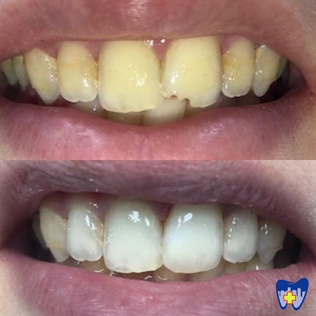 This patient was so happy with his chipped tooth repair today at City Dental! The dentist even polished his teeth to brighten his smile while he was here. Let us know how we can help you...give us a call at 803-764-3320. Because life is busy, and pain can't wait! 🦷 • • • #westcolumbia #westcolumbiasc #universityofsouthcarolina #columbiasc #lexingtonsc #lexingtonmedicalcenter #palmettohealthrichland #urgentcare #toothache #weekenddentist #emergencydentist #emergencydental #loveyoursmile #wecanhelp #lakemurraysc #lakemurray #becauselifeisbusy