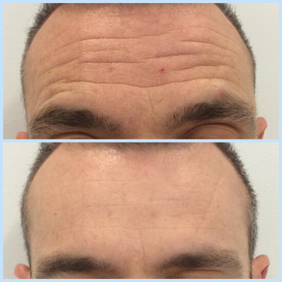 Botox application for the removal of forehead deep wrinkles