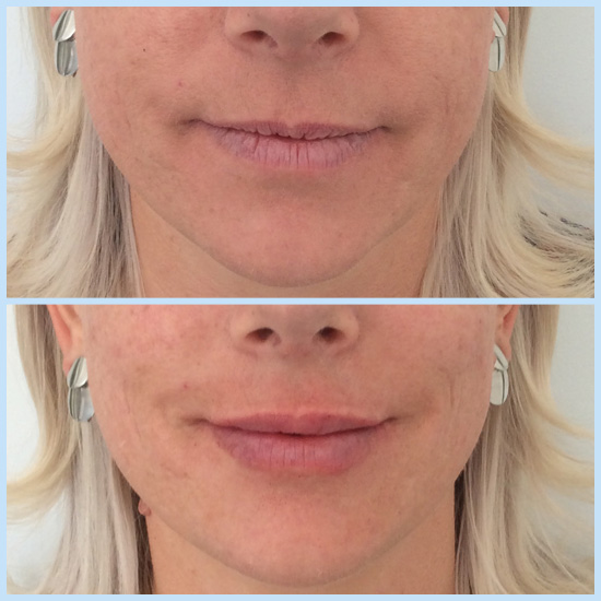 Photo showing how dermal fillers can smooth lips as well as add shape and volume