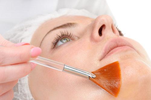 Chemical face peel