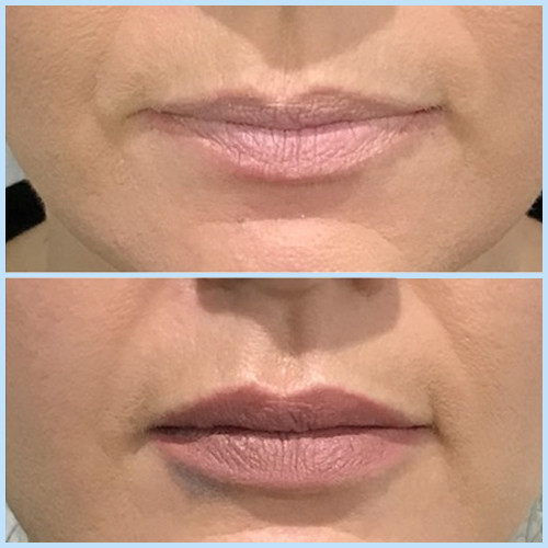 Lips01.JPG