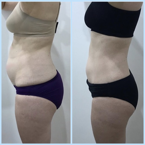 Photo of overweight woman about to undergo a cryolipolysis treatment