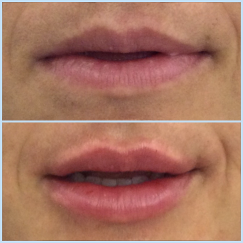 Lips 7.png
