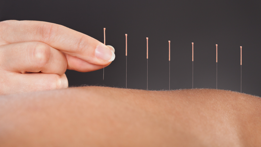 Acupuncture - Acupuncture is the use of needles being inserted into external areas of the body ie. skin, tissue, and muscle- these insertion takes place at acupoints.Acupoints offer subsequant manipulations; influencing the flow of qi. According to Chinese Medicine his offers relief for pain and treats and prevents various illnesses and disease.Single use Acupuncture needles are recognized by the US FDA as a Class II medical device.