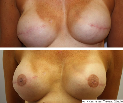 breast_before_after1+(1).jpg