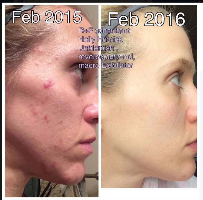 Unblemish is our Acne line.  #1 in the country.    It's where I first started on this journey and can honestly say, It's life changing.