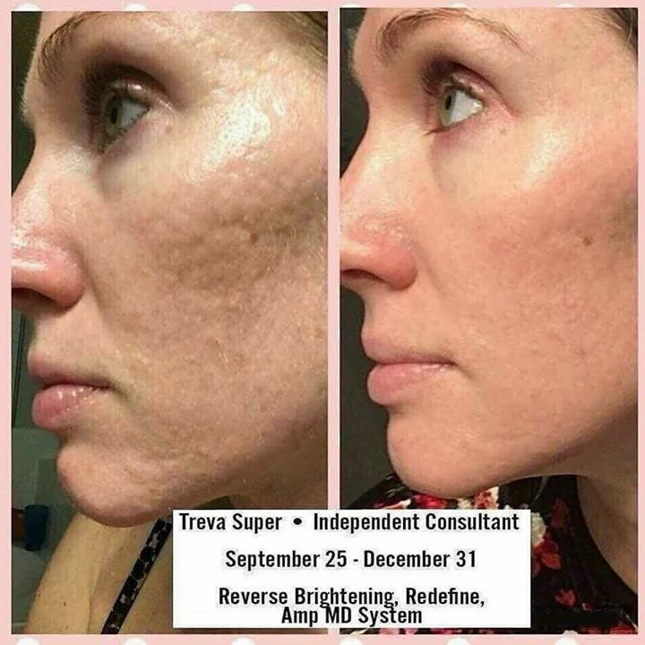 Our AMP system not only softens and removes the appearance of wrinkles but look at the acne scar results!