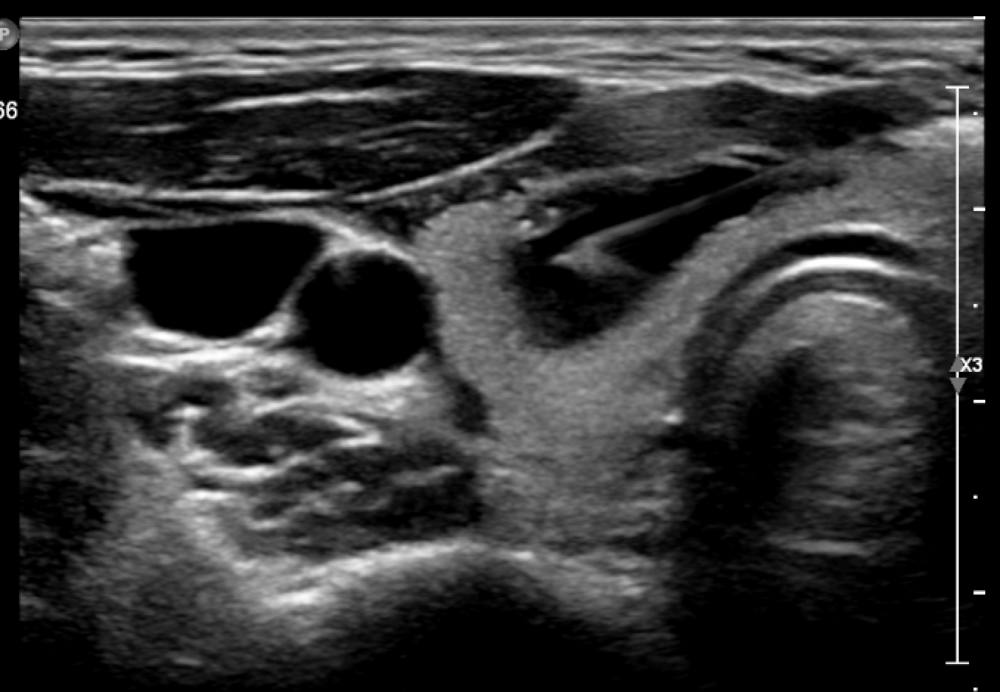 Ultrasound Guided Thyroid FNA
