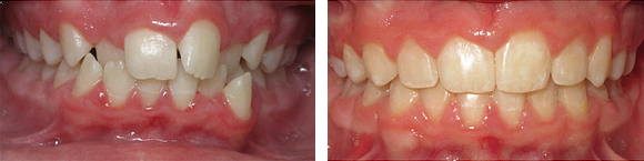 02 Before & After Orthodontics.png