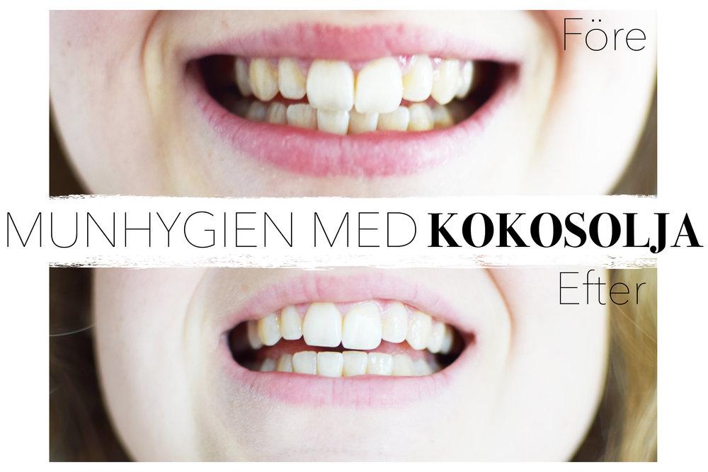 Bilden visar på mina tänder före användning av kokosolja och 1 månad efter... (bilderna har blivit redigerade - inte för att ändra resultatet utan för att de var för mörka och därför har jag ljusat upp dom)